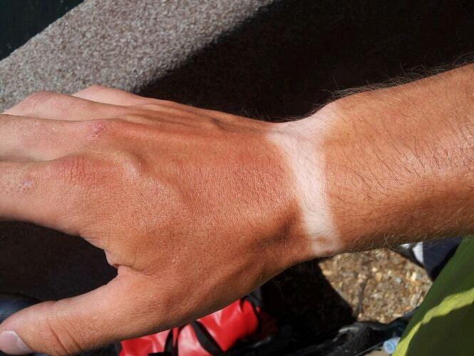 Когда появляется загар, вену видны уже не так хорошо. /Фото: obozrevatel.com.