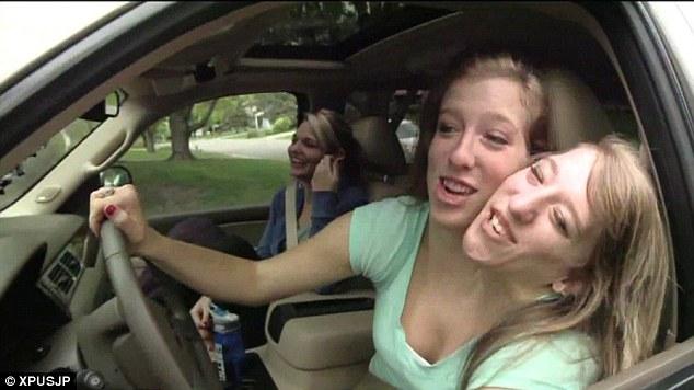 Как живут сиамские близнецы из штата Миннесота